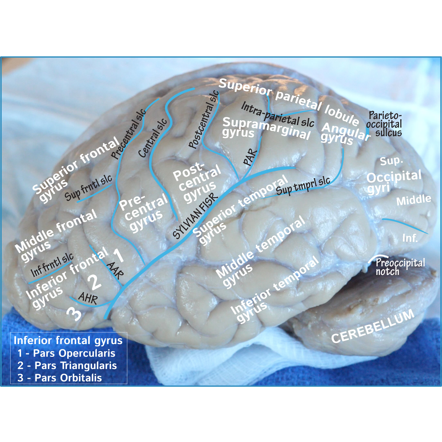Neuroanatomy Glossary: Cerebrum: Key Surface Anatomy | Draw It to ...
