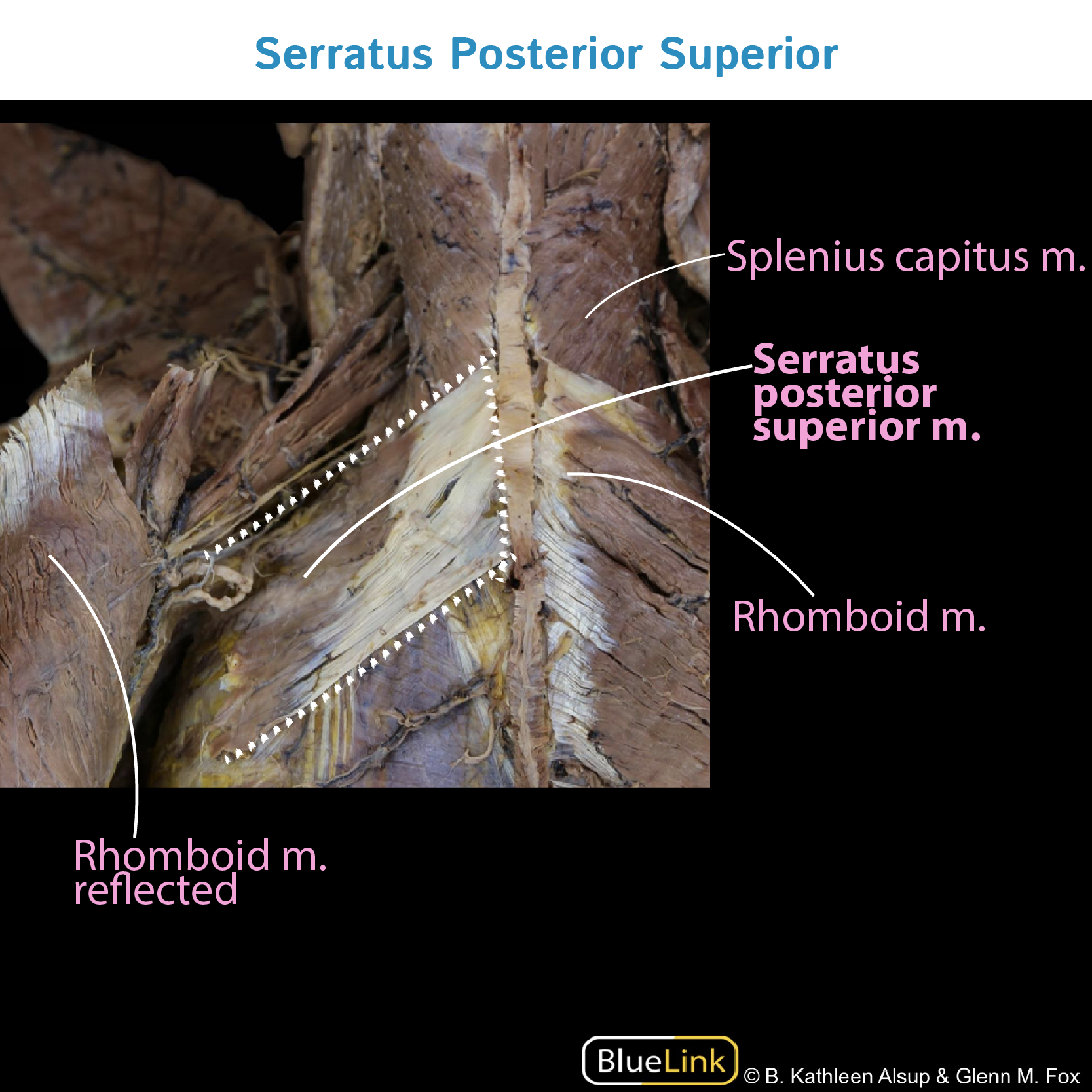 Gross Anatomy Glossary Serratus Posterior Photos Draw It To Know It