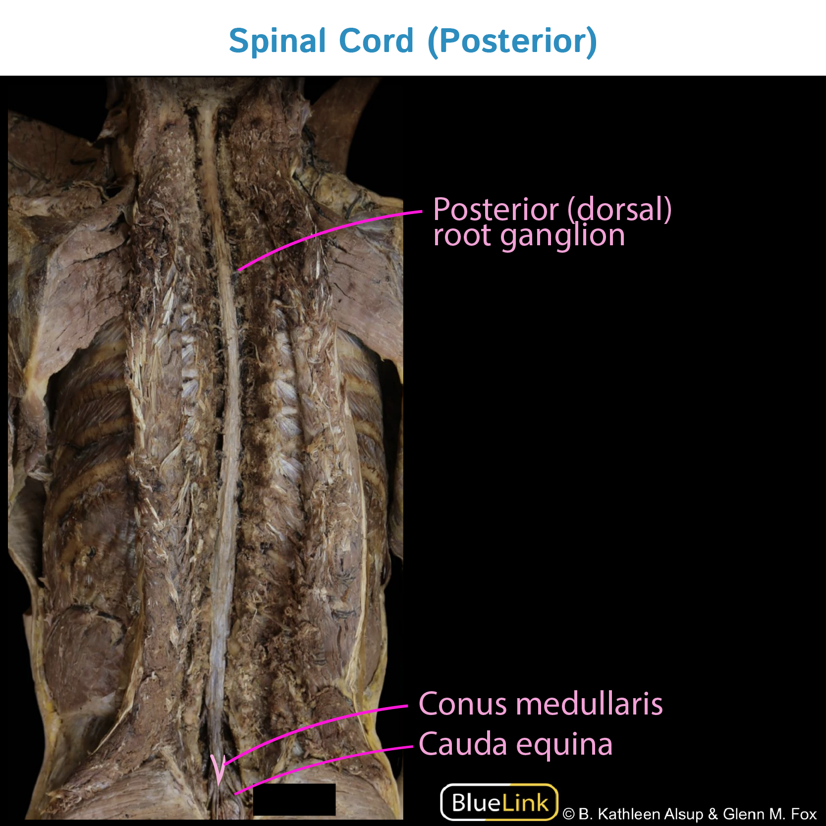 Gross Anatomy Glossary: Spinal Cord (Photos) | Draw It to Know It