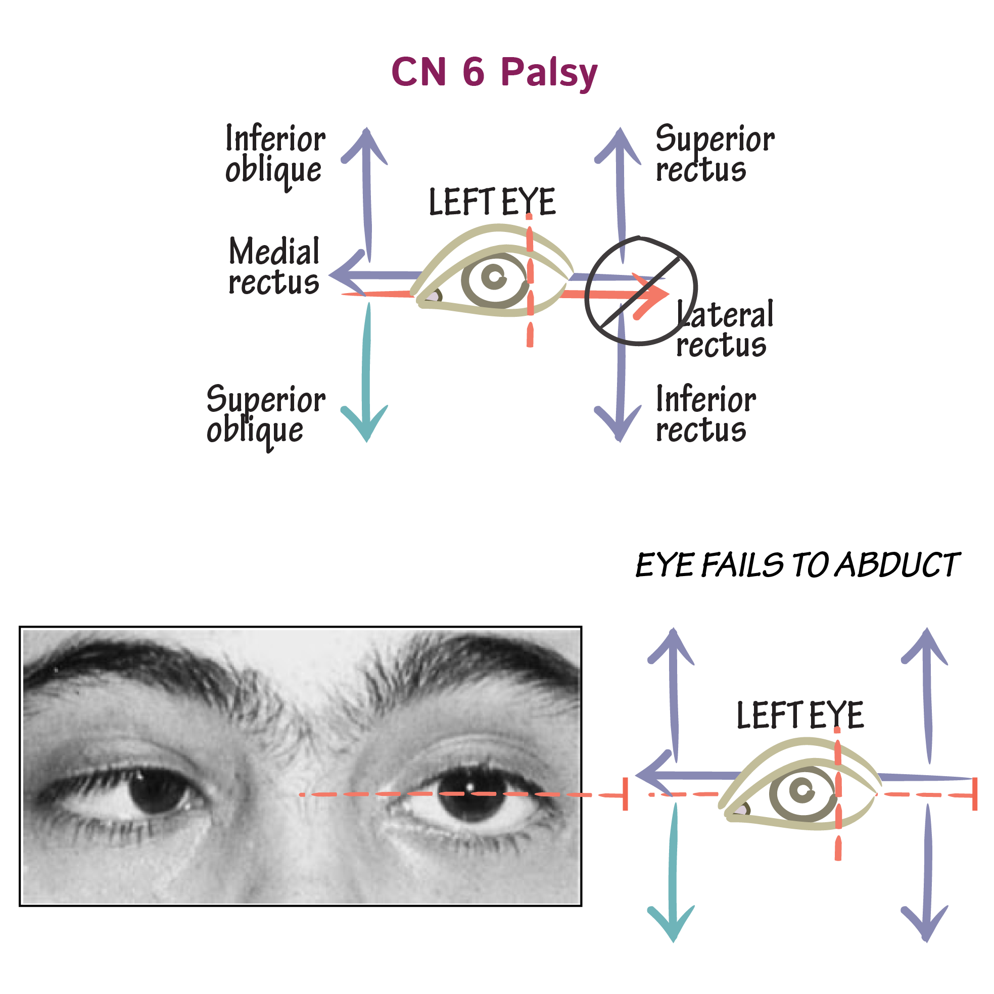 Neuroanatomy Glossary 6th Nerve Palsy Draw It To Know It