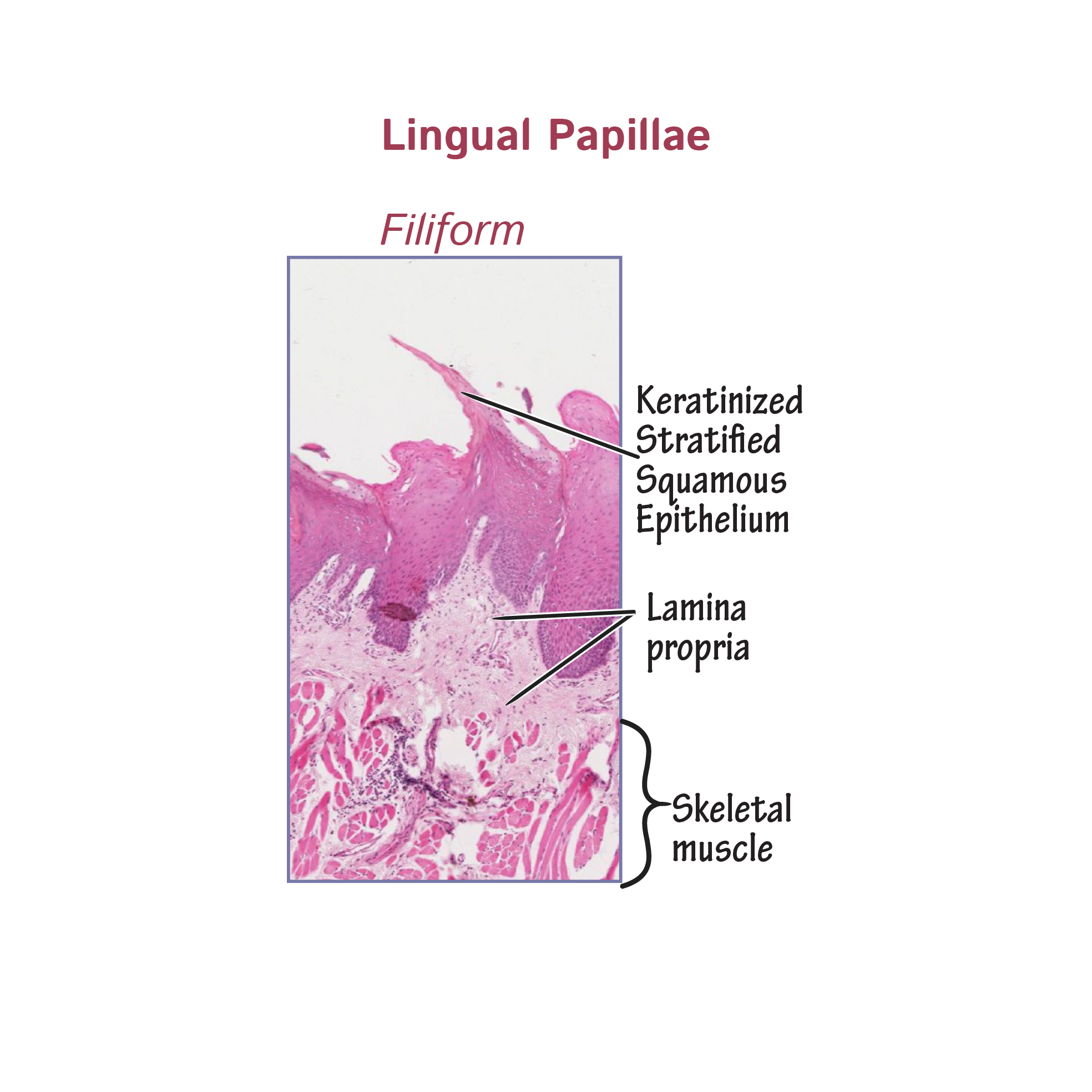 Histology Glossary Lingual Papillae Draw It To Know It