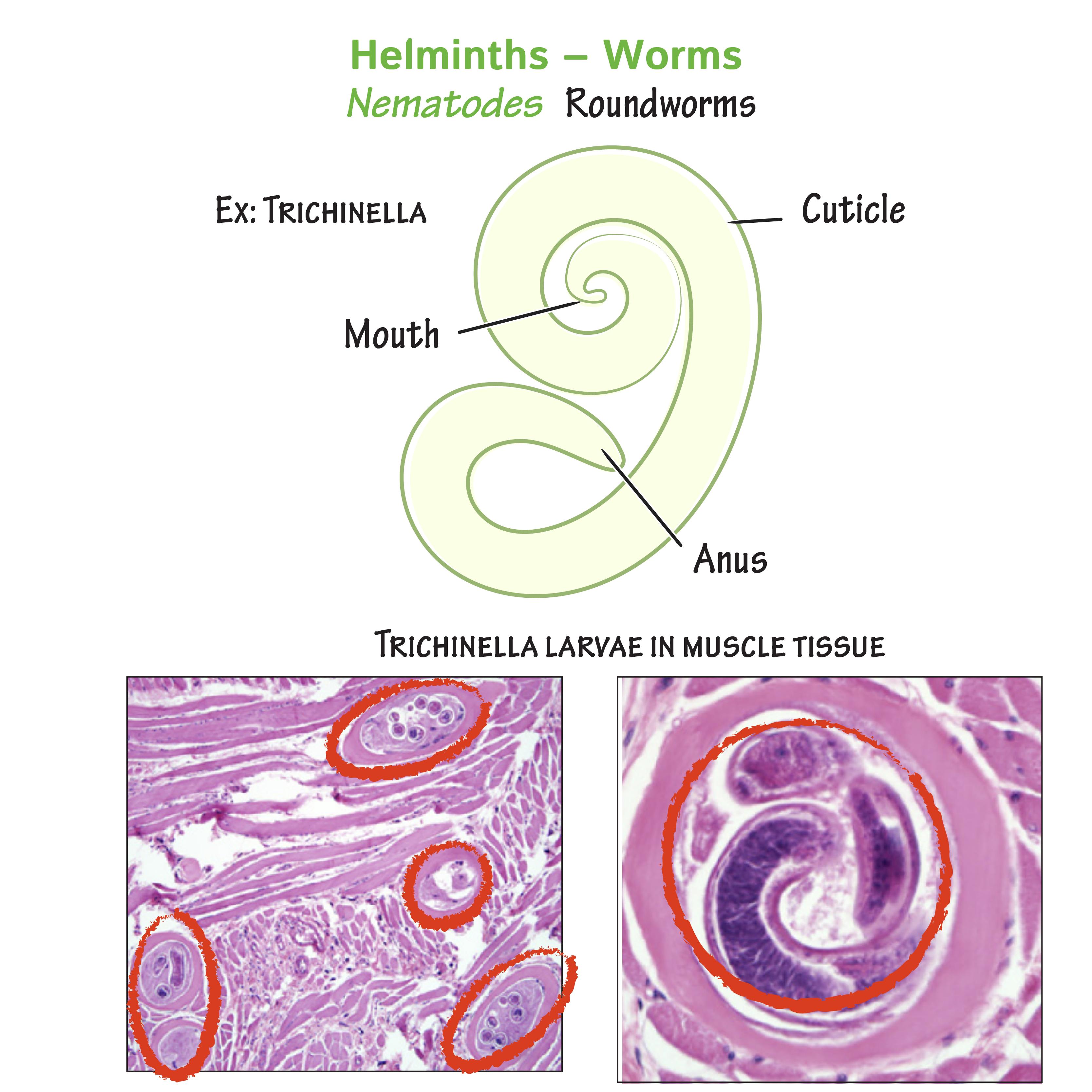 Trichinosis biohelminth - Paraziták példák