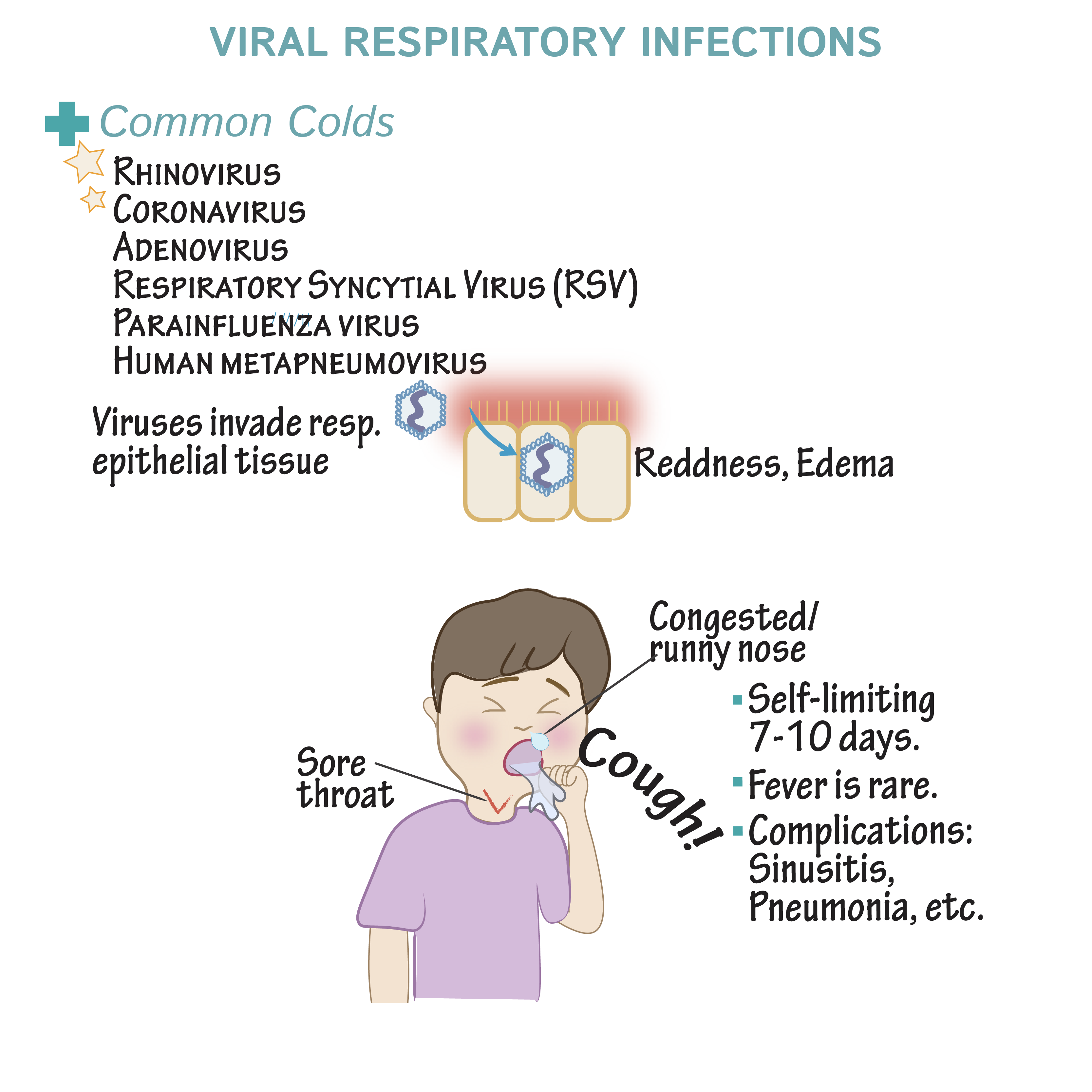 Pathology Glossary: Viral Respiratory Infections   Draw It to Know It