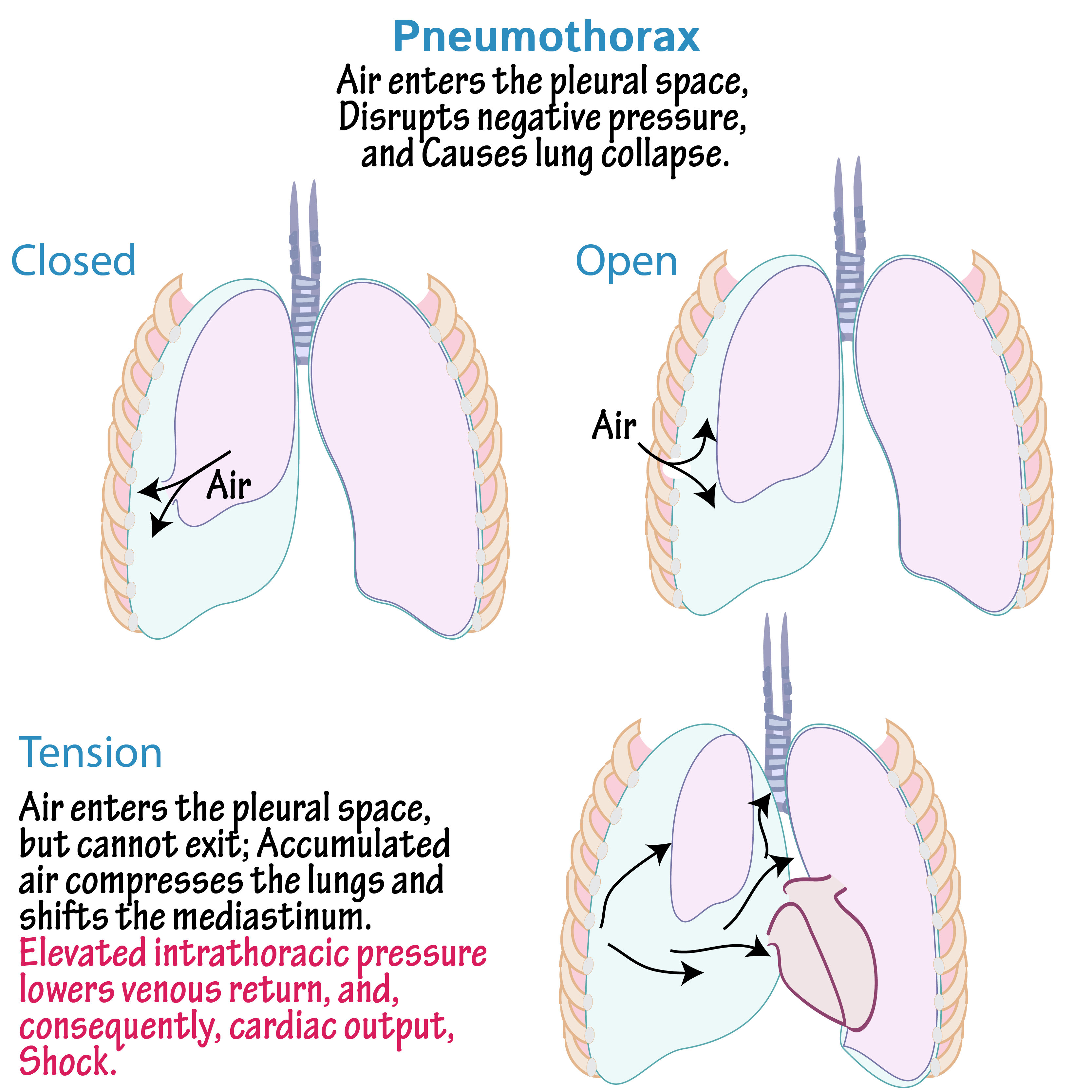 gége papillomatosis pneumothorax