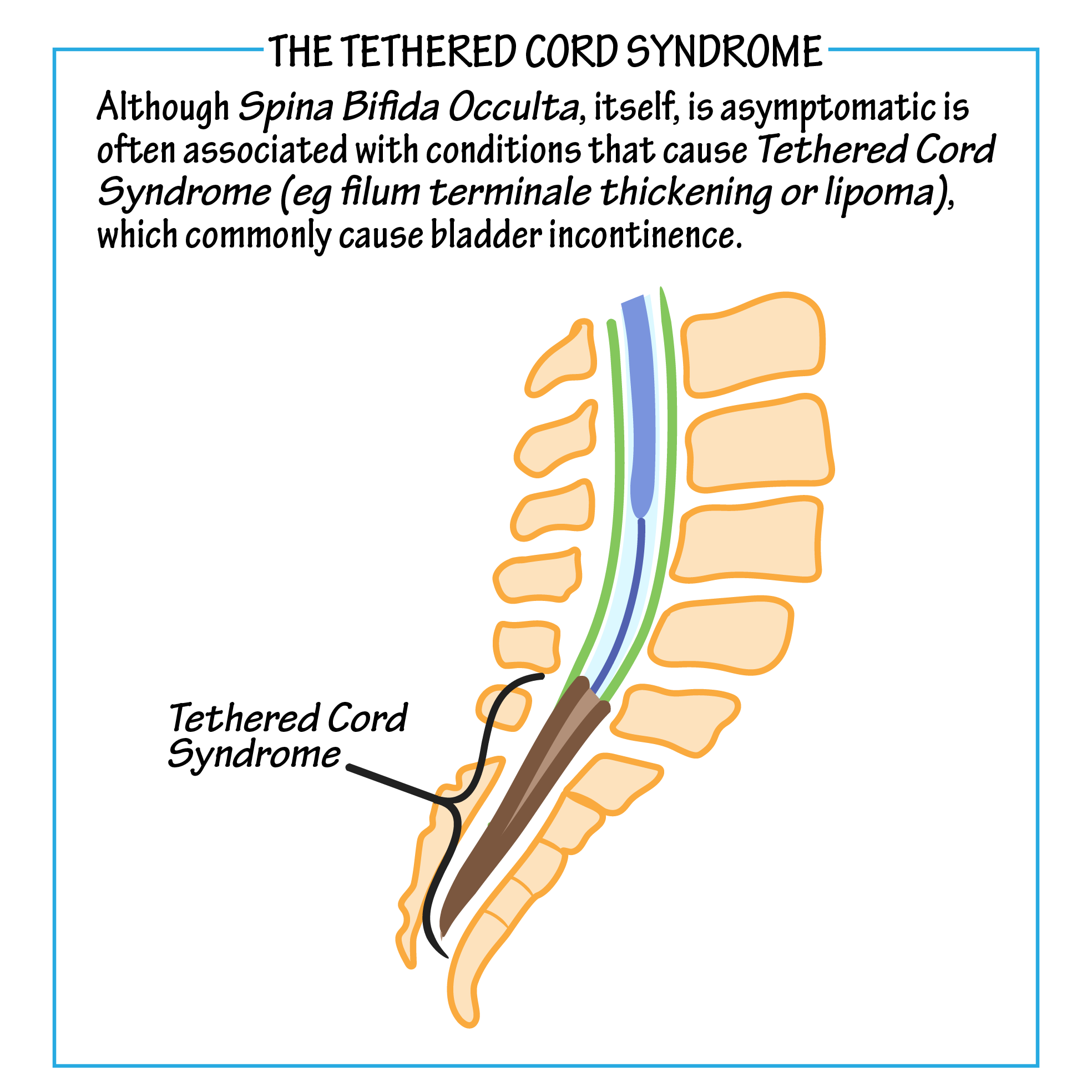 Tethered Cord Syndrome Neuroanatomy Flashcards Draw It To Know It The last portion of the pia mater. draw it to know it