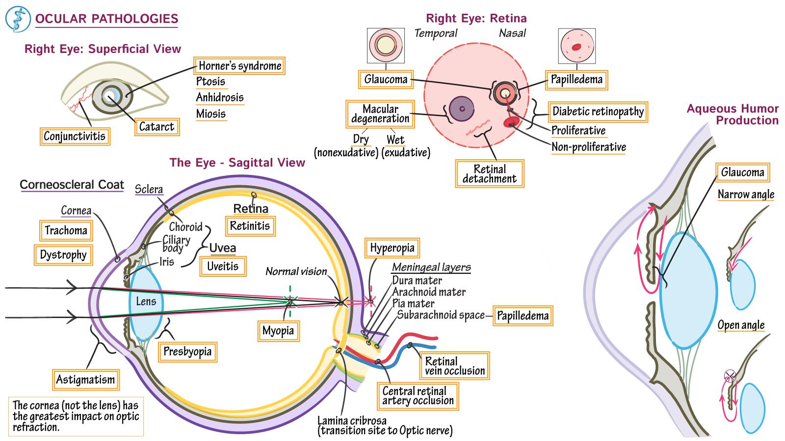 Neurosciences - CME/MOC: Ocular Pathologies | Draw It to Know It