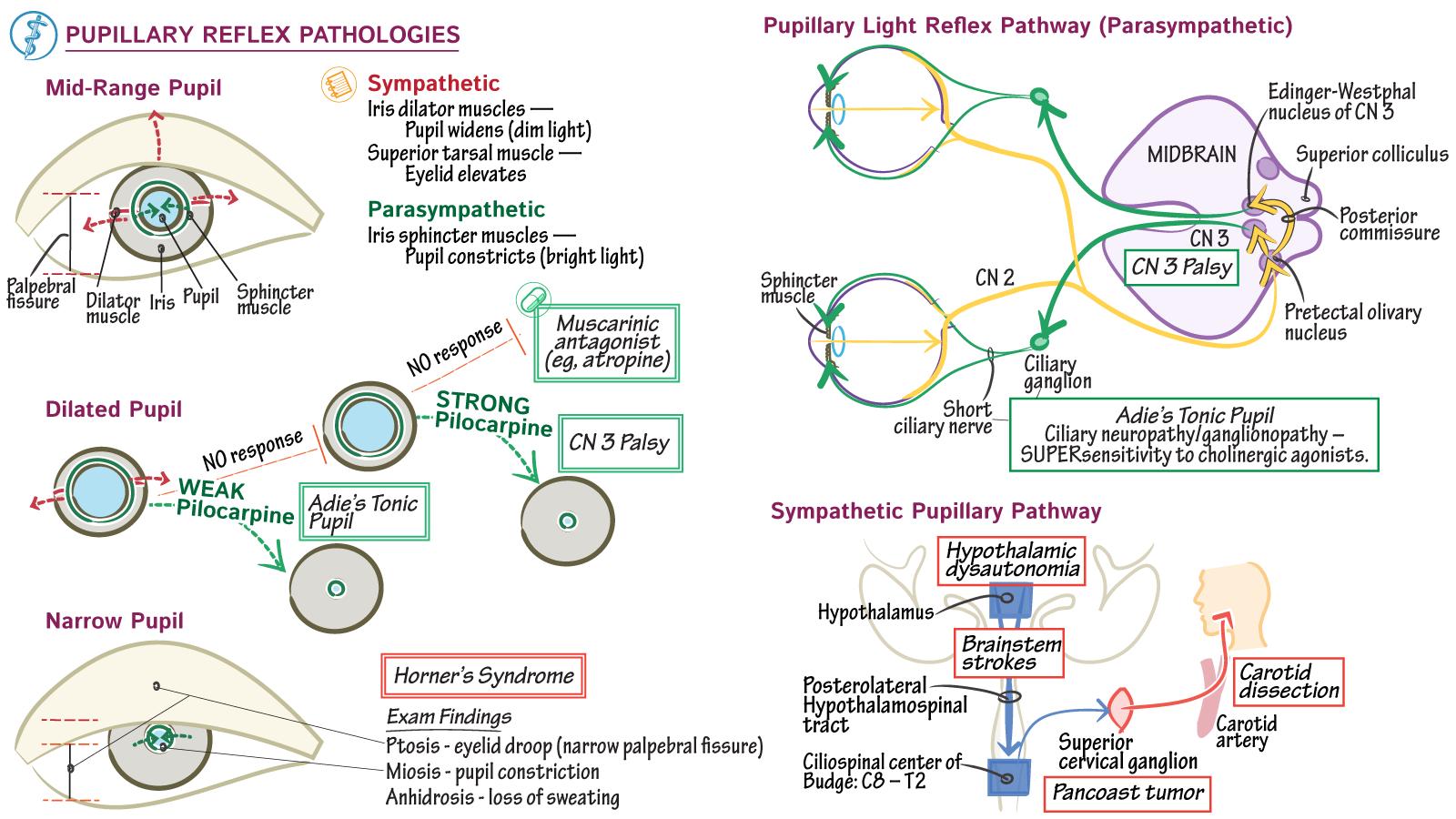 Neuroanatomy: Pupillary Reflex Pathologies   Draw It to Know It